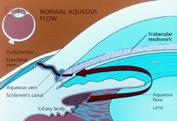 glaucoma, pseudoexfoliation, pigment dispersion, open angle, angle closure, Maine, laser, glaucoma surgery
